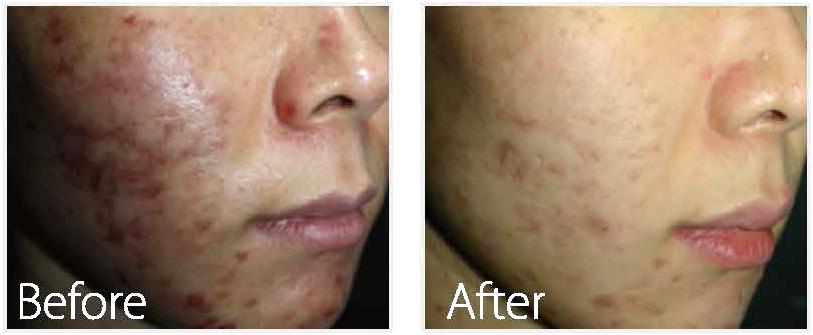 アトピー性皮膚炎・ニキビ肌の改善